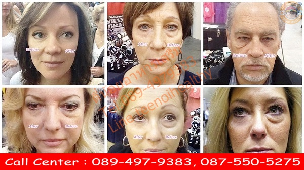 instantly ageless ราคา